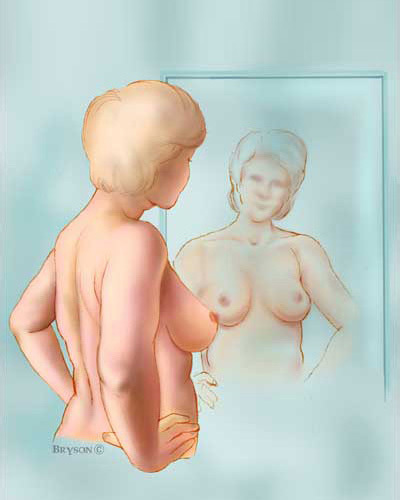 autoexploración-cáncer-de-mama