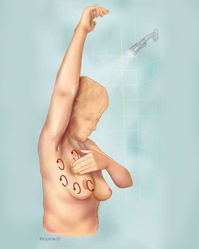 autoexploración-cáncer-de-mamas